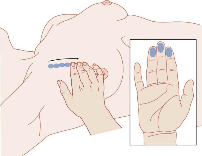 Examen mamario